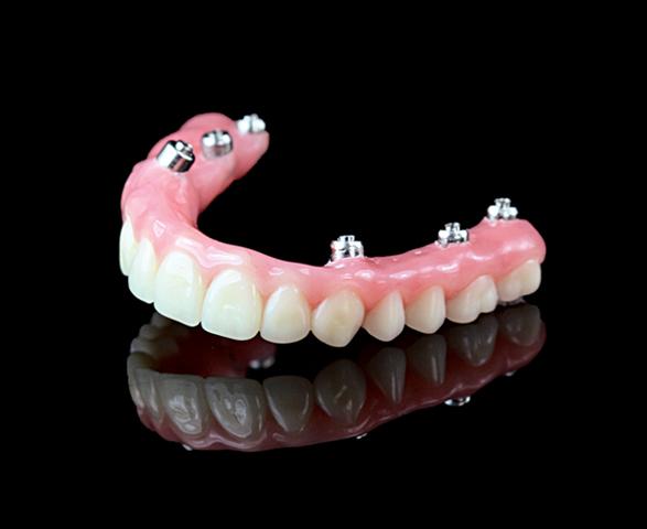 https://dentalstudioturkey.com/wp-content/uploads/2021/02/HybridDenture.jpg