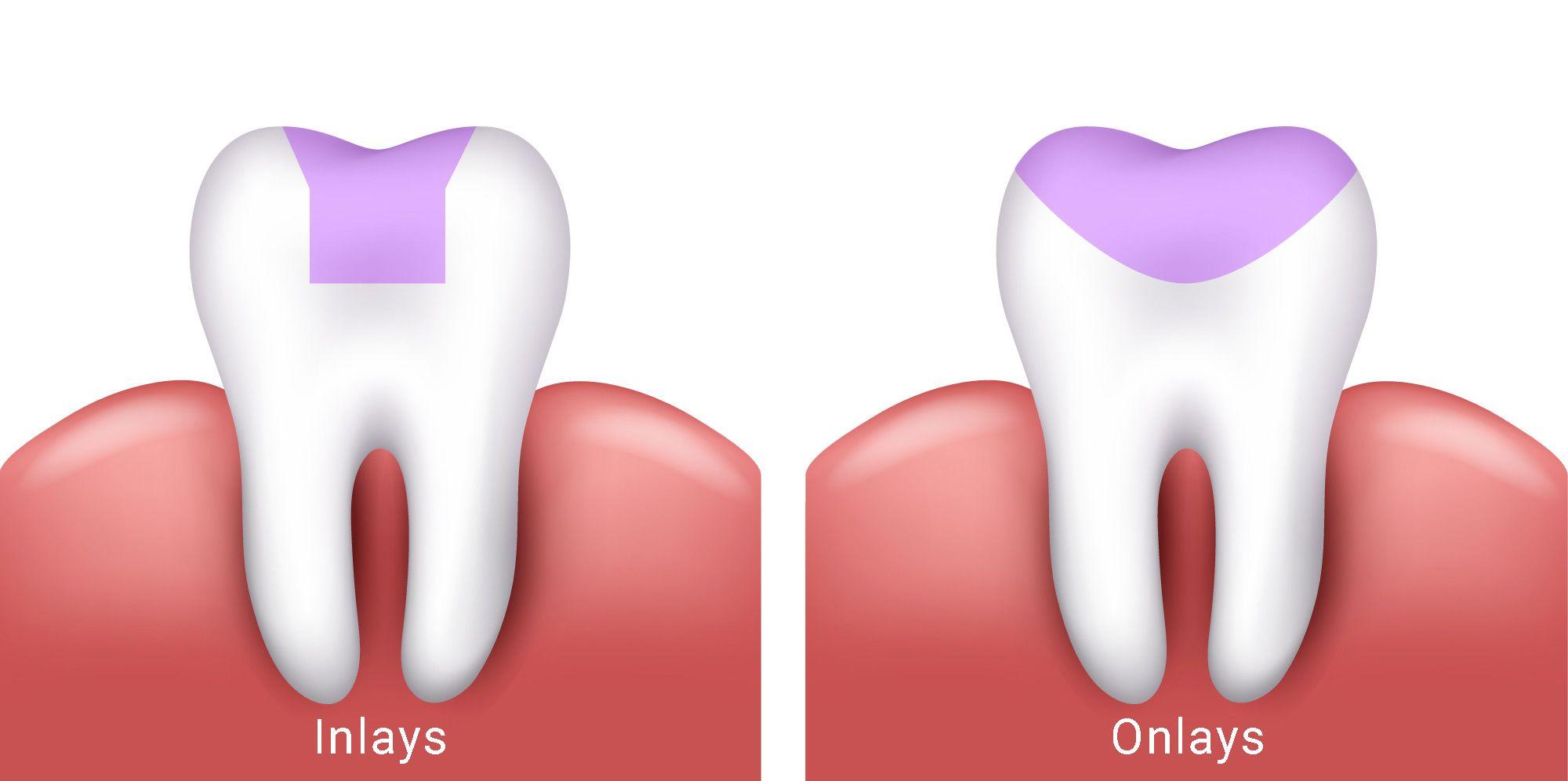 https://dentalstudioturkey.com/wp-content/uploads/2021/02/Inlays-and-Onlays2.jpg