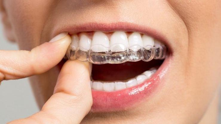 https://dentalstudioturkey.com/wp-content/uploads/2021/02/Invisalign.jpg