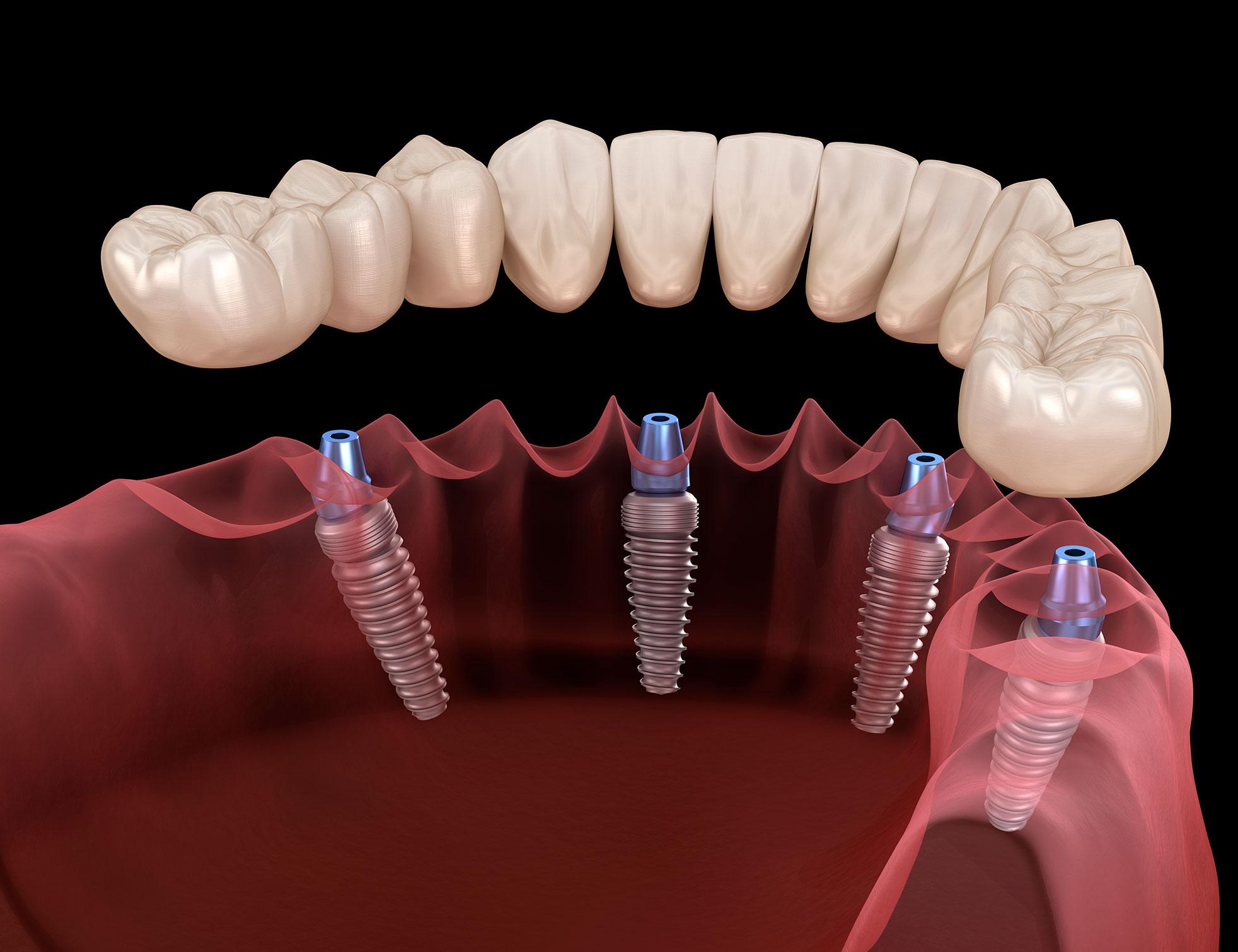 https://dentalstudioturkey.com/wp-content/uploads/2021/02/Same-Day-Implants-2.jpg