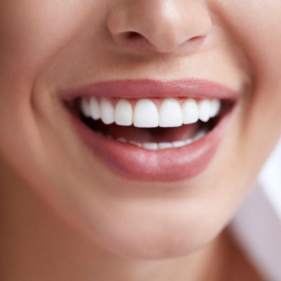 https://dentalstudioturkey.com/wp-content/uploads/2021/02/Smile-Makeover.jpg