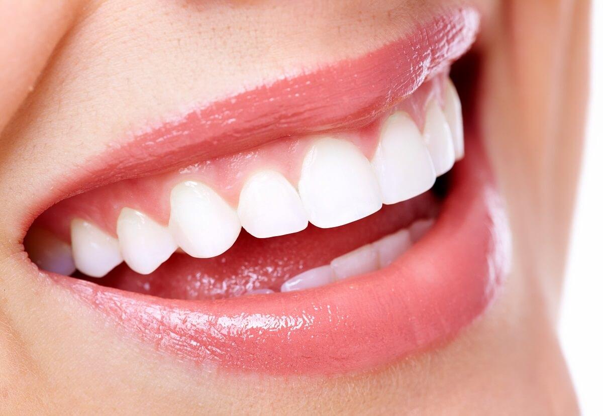 https://dentalstudioturkey.com/wp-content/uploads/2021/02/Smile-Makeover2.jpg