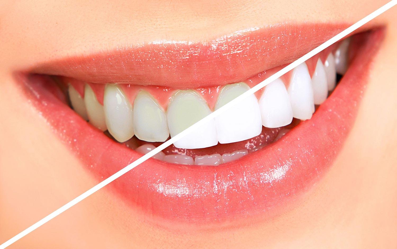 https://dentalstudioturkey.com/wp-content/uploads/2021/02/Teeth-Whitening.jpg