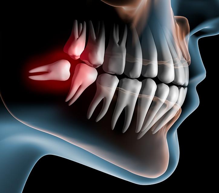 https://dentalstudioturkey.com/wp-content/uploads/2021/02/Wisdom-Teeth2.jpg