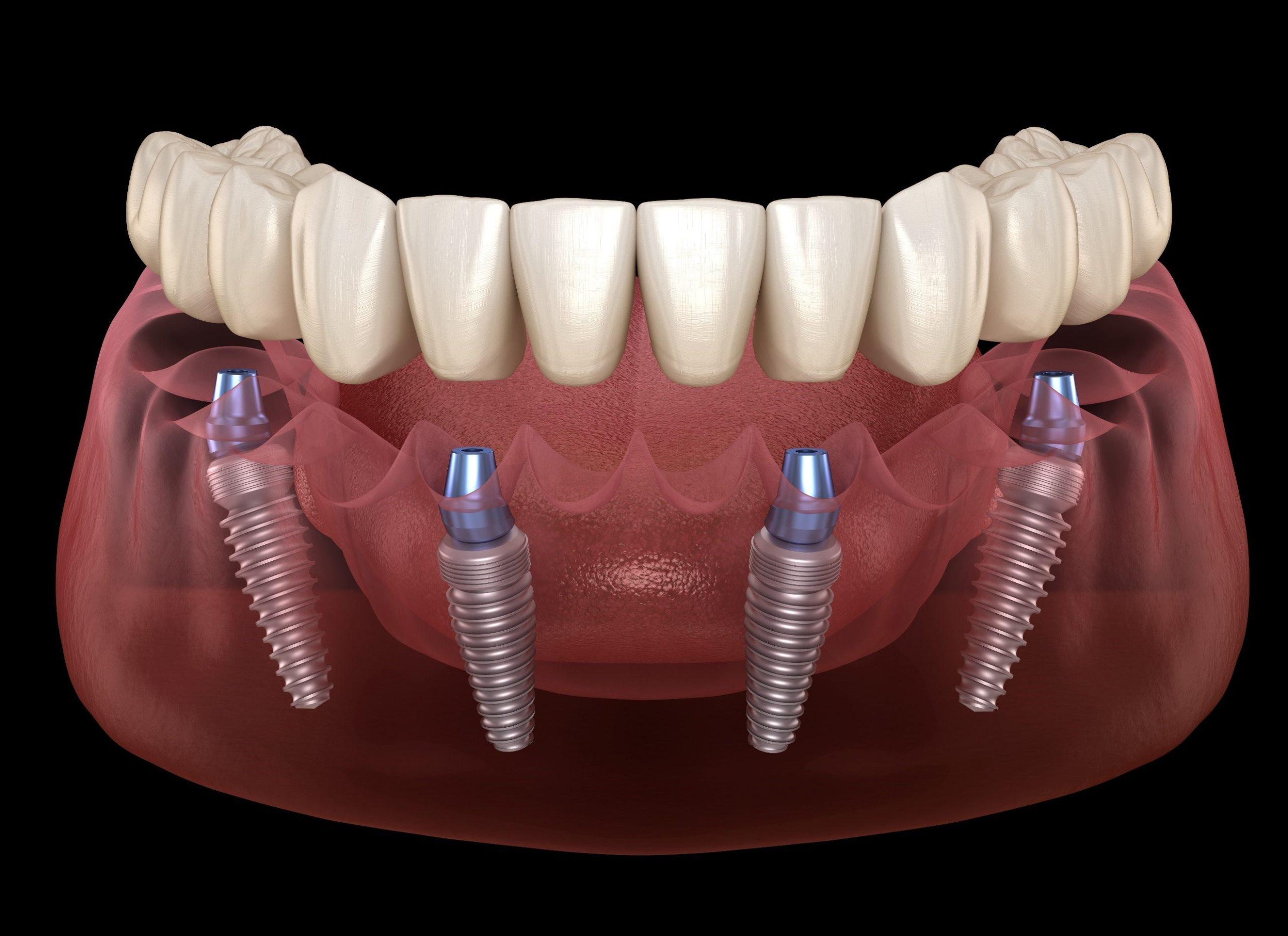 https://dentalstudioturkey.com/wp-content/uploads/2021/02/all-on-4-3-scaled.jpg