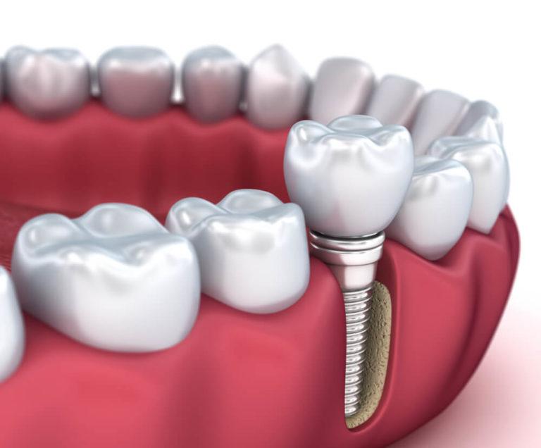 https://dentalstudioturkey.com/wp-content/uploads/2021/02/dentalimplant2-768x636.jpg