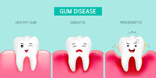 https://dentalstudioturkey.com/wp-content/uploads/2021/02/gum-disease2.jpg