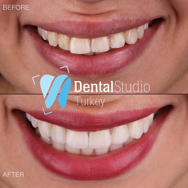 https://dentalstudioturkey.com/wp-content/uploads/2021/06/IMG_1301.png