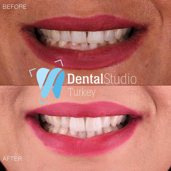 https://dentalstudioturkey.com/wp-content/uploads/2021/06/IMG_1304.png
