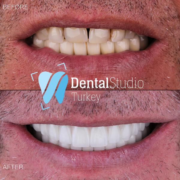 https://dentalstudioturkey.com/wp-content/uploads/2021/06/IMG_1305.png