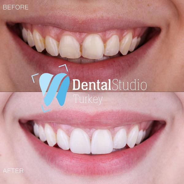 https://dentalstudioturkey.com/wp-content/uploads/2021/06/IMG_1306.png
