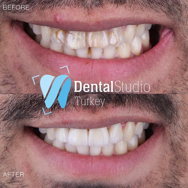 https://dentalstudioturkey.com/wp-content/uploads/2021/06/IMG_1307.png
