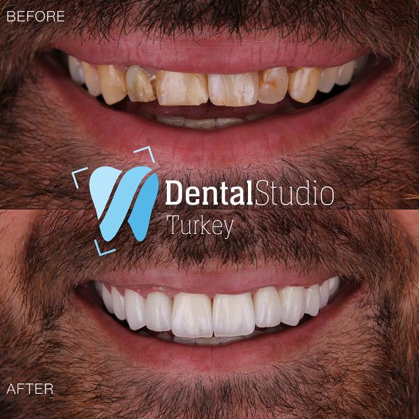 https://dentalstudioturkey.com/wp-content/uploads/2021/06/IMG_1308.png