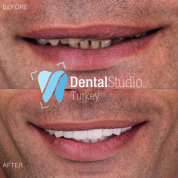 https://dentalstudioturkey.com/wp-content/uploads/2021/06/IMG_1310.png