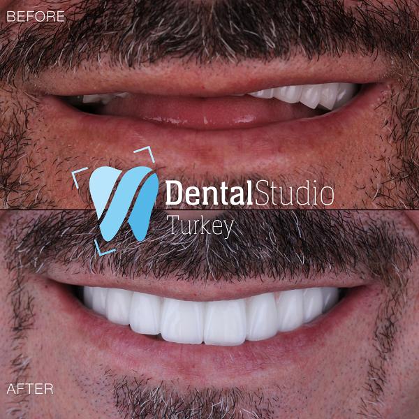 https://dentalstudioturkey.com/wp-content/uploads/2021/06/IMG_1312.png