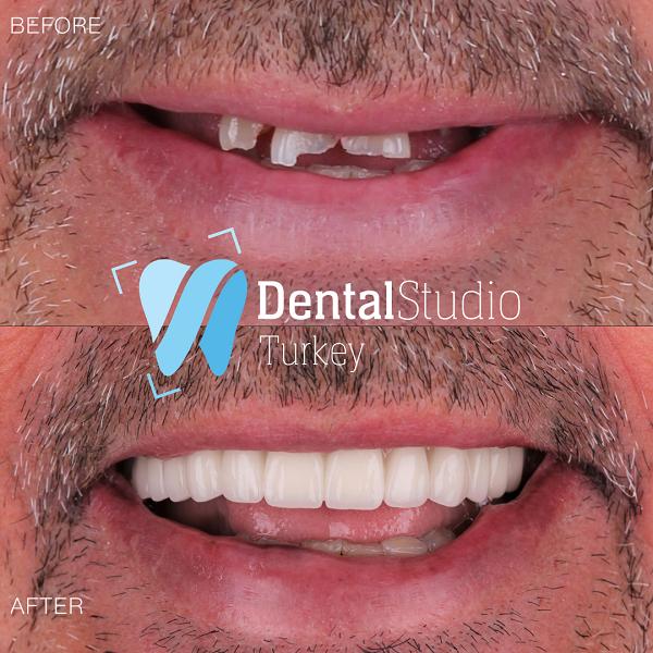 https://dentalstudioturkey.com/wp-content/uploads/2021/06/IMG_1313.png