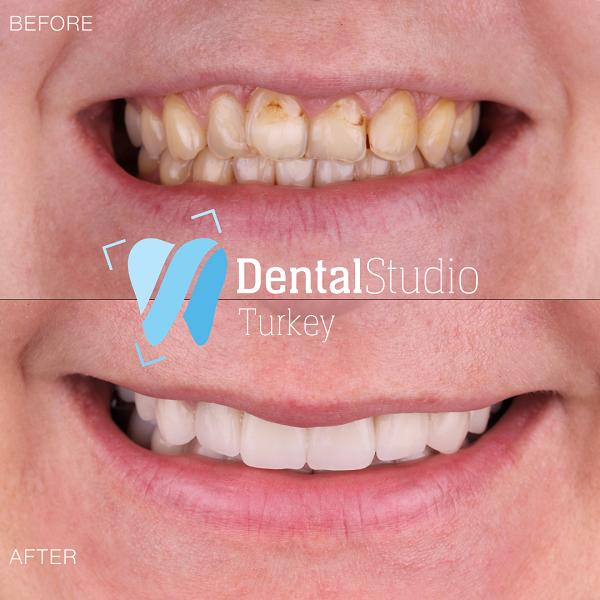 https://dentalstudioturkey.com/wp-content/uploads/2021/06/IMG_1314.png