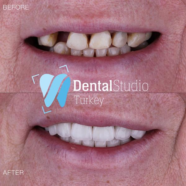 https://dentalstudioturkey.com/wp-content/uploads/2021/06/IMG_1317.png